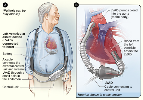 Cardiac surgery ventricular assist devices vad figure a shows the location of the heart and the typical equipment needed for an implantable lvad figure b shows how the lvad is connected to the heart ccuart Images