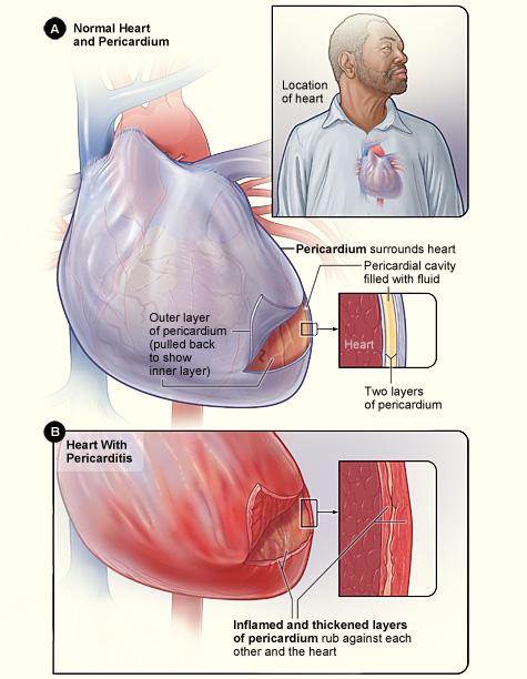 Cardiac Surgery - Pericarditis