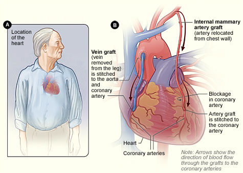 Cardiac Surgery Coronary Artery Bypass Grafting Cabg